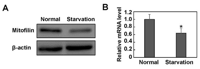 Mitofilin is down-regulated in starved HeLa cells. HeLa cells were cultured in Hank's balanced salt solution for 2 hr. The cell lysate and total RNA were extracted and subjected to western blotting (A) and real-time PCR assay (B). β-actin was detected as a loading control in immunoblot. The mRNA level of mitofilin was normalized to the level of β-actin. Images are representative of three independent experiments. Data are expressed as mean±SD. * P