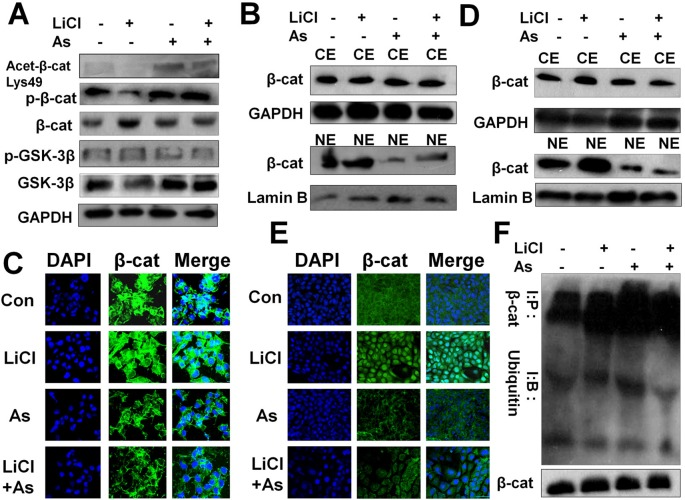 Aspirin impedes the Wnt/β-catenin pathway by promoting β-catenin acetylation, phosphorylation and cytoplasmic degradation, and inhibiting its nuclear accumulation and transcriptional activity. (A) Western blot of p-β-catenin, β-cateninm, <t>p-GSK-3β,</t> GSK-3β and acetylated β-catenin in MDA-MB-231 cells incubated with or without 10 mM LiCl for 6 h prior to treatment with or without 5 mM Aspirin for 24 h. (B) Western blot analysis of β-catenin protein distribution in nuclear extract (NE) and cytoplasmic fractions (CE) of MDA-MB-231 cells incubated with or without 10 mM LiCl for 6 h prior to treatment with 5 mM Aspirin for 24 h. (C) Immunofluorescent staining of MDA-MB-231 cells that were treated with or without Aspirin or LiCl. Cells were fixed and stained with a β-catenin antibody (green) and DAPI (blue), and imaged by confocal microscopy. (D) Same procedure performed as in (B) with the use of 4T1 cells. (E) Same procedure performed as in (C) with the use of 4T1 cells. (F) Western blot analysis of β-catenin and ubiquitinated β-catenin in MDA-MB-231 cells that were incubated with the indicated reagents for 24 h and subsequently treated with proteasome inhibitor benzyloxycarbonyl-leu-leu-leu-aldehyde (MG132) 25 µM for 5 h before harvest. Endogenous β-cat was immunoprecipitated with anti-β-catenin antibodies and Western blot was performed with anti-β-catenin or anti-ubiquitin antibodies.