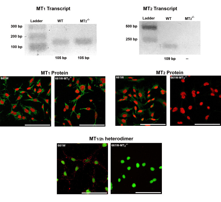 Genetic ablation of MT 2 with CRISPR/Cas9 system does not affect MT 1 mRNA or protein. Top panels: cDNA from 661W and 661W-MT 2 −/− cells was analyzed with reverse transcriptase PCR (RT–PCR) to detect MT 1 (left) and MT 2 (right) expression. Middle panels: Immunofluorescence was performed in 661W and 661W-melatonin receptor type 2 (MT 2 ) −/− cells to detect MT 1 (left) and MT 2 (right) proteins. The positive signal of each receptor is shown in green, and nuclei are counterstained in red. Lower panel: The presence or absence of MT 1 /MT 2 heterodimer in 661W and 661W-MT 2 −/− cells was assessed with proximity ligation assay (PLA; positive signal in red), and nuclei were counterstained in green. MT 1 expression (transcript and protein) was detected in 661W and 661W-MT 2 −/− cells, whereas MT 2 expression (transcript and protein) was detected only in 661W cells. Accordingly, MT 1/2h was found only in 661W cells. Scale bars = 100 µm.