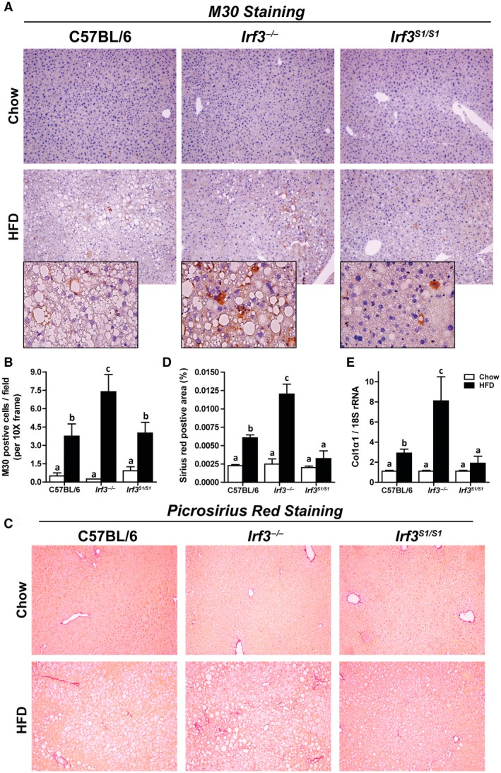 Enhanced markers of hepatocellular death and fibrosis in Irf3 −/− mice compared with wild‐type and Irf3 S1/S1 mice after HFD feeding. Male C57BL/6, Irf3 −/− , and Irf3 S1/S1 mice were fed an HFD or chow for 12 weeks. (A,B) Paraffin‐embedded liver sections were stained for M30, a caspase‐dependent cleavage product of cytokeratin 18. Images were acquired using 10× and 40× objectives, and the positive area was quantified, n = 4 per genotype. (C,D) Paraffin‐embedded liver sections were stained with sirius red. Images were acquired using a 40× objective, and the positive area was quantified, n = 4 per genotype. (E) Expression of Col1α1 mRNA was analyzed by qRT‐PCR. Values were normalized to 18S and are shown as fold increase over the chow‐fed C57BL/6 control group, n = 8 per genotype. Values represent means ± SEM. Values with different alphabetical superscripts are significantly different, P