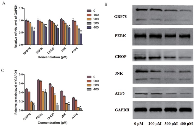TUDCA alleviates ER stress in SW-13 cells. After 48 h of TUDCA intervention, total <t>RNA</t> was extracted and used to detect the mRNA expression of ER stress-related factors using (A) reverse transcription-quantitative <t>PCR</t> and (B) western blot analysis. (C) Quantification of the western blot analysis. *P