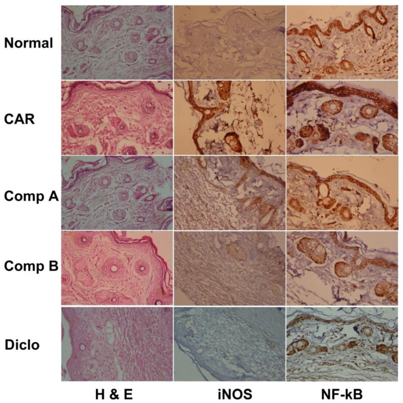 Effect of compounds A, B, or diclofenac (Diclo) on paw skin histology and iNOS and NF-κB expression detected by immunohistochemistry in carrageenan (CAR)-induced paw edema in mice (Original magnification 400×).