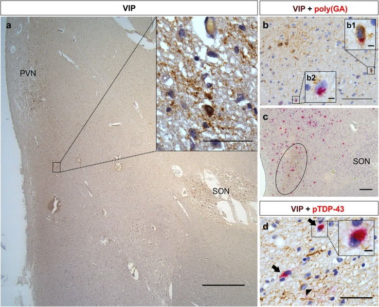 Neuropathological investigation of the SCN-related neurons in the hypothalamus of C9orf72 and non C9orf72 cases. VIP-ir neurons in the hypothalamus at the level of the SON and PVN were referred to as SCN-related neurons (case nonC9–16) ( a ). The inset shows VIP-immunostaining in neurons and fibers ( a ). Poly(GA) pathology (visualized by Fast red) was observed in few VIP-ir SCN-related neurons (visualized in brown with <t>DAB)</t> in half of the C9orf72 cases (case C9–3) ( b ). Inset b1 shows a magnification of a SCN-related neuron with poly(GA) pathology; inset b2 shows a magnification of a VIP-negative neuron with a poly(GA) inclusion. Poly(GA) inclusions (visualized by Fast red) were observed in the area of the SCN-related neurons and fibers (encircled) visualized in brown by DAB ( c ), however, more poly(GA) inclusions are observed in the area surrounding the SCN-related neurons and fibers (case C9–1) ( c ). SCN-related neurons were usually spared from pTDP-43 pathology. In some cases, pTDP-43 pathology (black arrows) (visualized by Fast red) was observed in VIP-negative neurons located in between the SCN-related neurons (arrowhead) and fibers (case nonC9–1) ( d ). The inset in d shows a magnification of a VIP-negative neuron with pTDP-43 pathology. Scale bars represent 1000 μm in a , 100 μm in b , 200 μm in c , 50 μm in d and inset of a , and 5 μm in insets of b and d . VIP-ir stands for vasoactive intestinal peptide-immunoreactive; SCN, suprachiasmatic nucleus; DAB, <t>3,3′-diaminobenzidine</t>