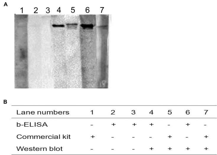 Evaluation of the discrepancy of testing results between sdAb-ELISA and the commercial ELISA kit by Western blot. Notes: ( A ) Western blot was performed to detect swine serum samples with discrepancy between sdAb-ELISA and the commercial ELISA kit. ( B ) The detection results of three indicated methods. Abbreviation: sdAb, single-domain antibody.