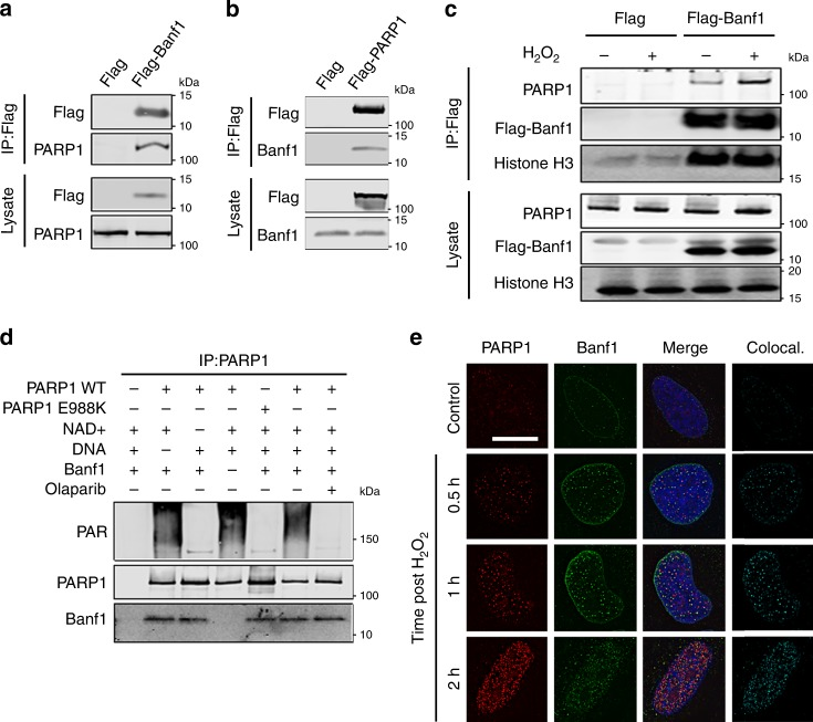 Banf1 binds to PARP1 following oxidative stress. a , b Banf1 and PARP1 are in a complex; immunoprecipitations from HEK293T cells expressing <t>Flag,</t> Flag-Banf1 or Flag-PARP1 using Flag <t>antibodies.</t> Immunoprecipitates were immunoblotted with the indicated antibodies. c The Banf1:PARP1 interaction after H 2 O 2 ; immunoprecipitations from HEK293T cells ectopically expressing Flag or Flag-Banf1 1 h after H 2 O 2 removal. Immunoprecipitates were immunoblotted with the indicated antibodies. d Banf1 and PARP1 directly interact. The indicated purified proteins (±NAD + /DNA/olaparib) were incubated together before immunoprecipitation with PARP1 antibodies and immunoblotting with the indicated antibodies. e Banf1 and PARP colocalise following oxidative stress induced by H 2 O 2 in U2OS cells. Representative cells fixed at the indicated times following removal of H 2 O 2 and stained with the indicated antibodies are shown, the colocalisation was analysed using ImageJ. The scale bar represents 10 μm. Immunoblots are representative of three independent experiments. Source data are provided as a Source Data file.