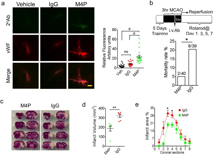 M4P application improves stroke outcome after reperfusion. a Immunostaining of ipsilateral hemispheres and the summary of the fluorescent intensity (19–28 images per group from 3 experiments). Vehicle, control rabbit IgG (100 μg), or M4P (100 μg) was injected 2 h after stroke induction. At 3 h, rat brains were collected and sectioned for immunostaining using secondary antibodies against rabbit IgG. Summary of the fluorescent intensity (19–28 images per group from 3 experiments) is shown on the right. b Experimental protocol of a 3-h MCAO followed by reperfusion. M4P (100 μg) or control rabbit IgG (100 μg) was administered intravenously 1 h prior recanalization. Mortality rates are shown (lower panel). c TTC staining of rat brains 1 day after operation. d The summary of total infarct volume ( n = 6). e Section-by-section infarct area distribution ( n = 6). In a , statistical analysis was performed by one-way ANOVA with Bonferroni's post hoc analysis; in b , by Fisher exact probability test; in d and e , by Student's t test. * p