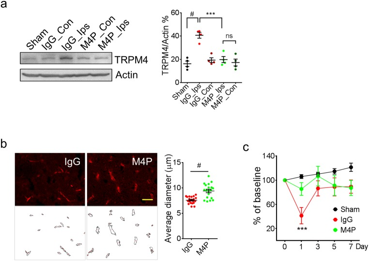 M4P treatment ameliorates vascular damage and improves functional recovery after stroke reperfusion. a Western blot detecting TRPM4 expression in sham-operated rats and MCAO rats treated with IgG or M4P. Tissue lysates were prepared from penumbra regions in ipsilateral hemispheres of control IgG or M4P treated MCAO rat (Ips) and symmetrical regions in contralateral hemispheres (Con), and from similar regions of sham-operated rat brain (Sham). n = 4. b The blood vessels within the ipsilateral hemispheres 1 day after reperfusion was stained by anti-vWF antibody. Feret vascular diameter was quantified and summarised (17 images per group from 3 experiments). c Assessment of motor functions by Rotarod test ( n = 8). In a , statistical analysis was performed by one-way ANOVA with Bonferroni's post hoc analysis; in b , by two-tailed unpaired Student's t test; in c , by two-way ANOVA with Bonferroni's post hoc analysis. *** p