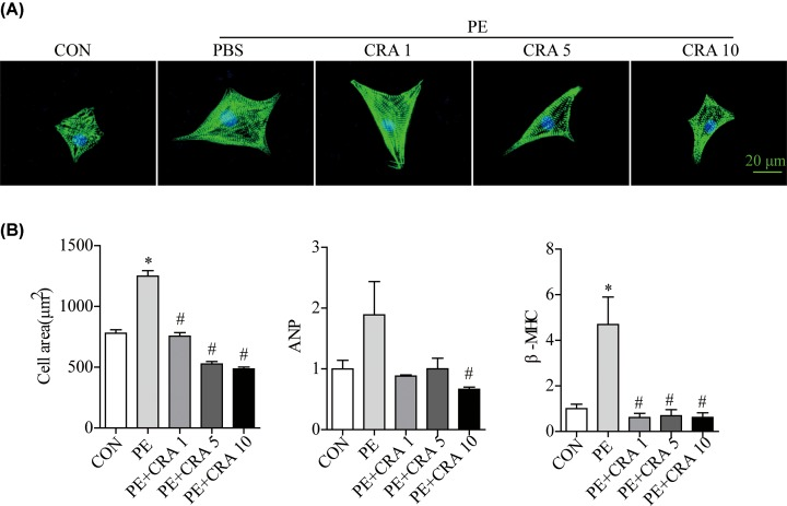 CRA blunts cardiomyocyte hypertrophy in PE-treated H9c2 cells ( A ) Representative imaging of immunostaining H9c2 cells for α-actinin (green) in each group. ( B ) Quantification of cell surface area ( n = 50 + cells per group), ANP, and β-MHC mRNA levels in H9c2 cells in each group. * P
