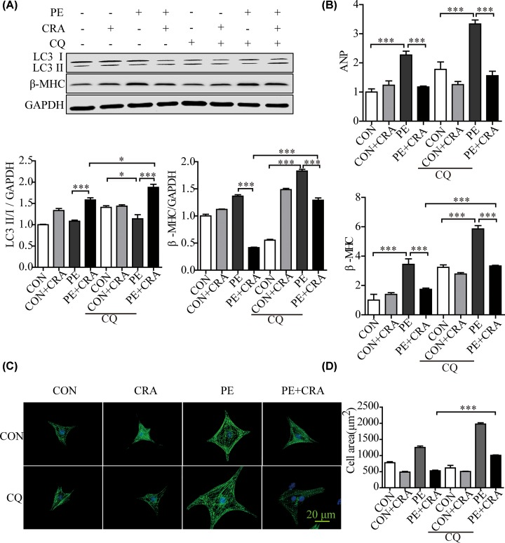 Autophagy inhibition by CQ counteracts the protective effect of CRA on cardiomyocyte hypertrophy ( A ) Representative blots and quantitative results for LC3 and <t>β-MHC</t> protein expression in H9c2 cells in each group ( n = 4 per group). ( B ) ANP and β-MHC mRNA expression in H9c2 cells in each group. ( C ) Representative imaging of immunostaining H9c2 cells for α-actinin (green) in each group. ( D ) Quantification of cell surface area ( n = 50 + cells per group); * P