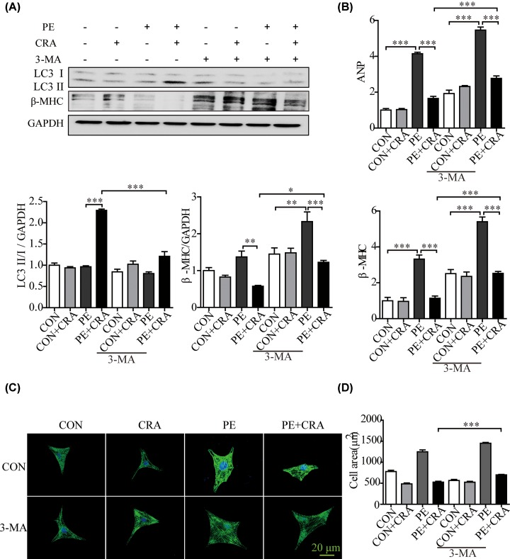 Autophagy inhibition by 3-MA counteracts the protective effect of CRA on cardiomyocyte hypertrophy ( A ) Representative blots and quantitative results for LC3 and β-MHC protein expression in H9c2 cells in each group ( n = 4 per group). ( B ) ANP and β-MHC mRNA expression in H9c2 cells in each group. ( C ) Representative imaging of immunostaining H9c2 cells for α-actinin (green) in each group. ( D ) Quantification of cell surface area ( n = 50 + cells per group); * P