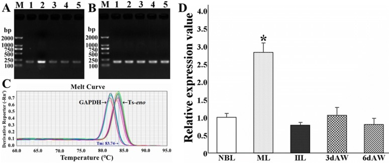 Real-time quantitative PCR (qPCR) analysis of Ts- eno transcription at different stages of T. spiralis development. A Agarose gel electrophoresis of the Ts- eno amplicon (188 bp). M: DL2000 DNA marker; 1: NBL; 2: ML; 3: IIL; 4: 3 days AW; 5: 6 days AW. B Agarose gel electrophoresis of the GAPDH amplicon (196 bp). M: DL2000 DNA marker; 1: NBL; 2: ML; 3: IIL; 4: 3 days AW; 5: 6 days AW. C Melt curves of Ts- eno and GAPDH generated by 7500 Software (version 2.0.5). D qPCR analysis of Ts- eno transcription at different T. spiralis stages. The asterisks (*) represent significant differences with other stages ( P