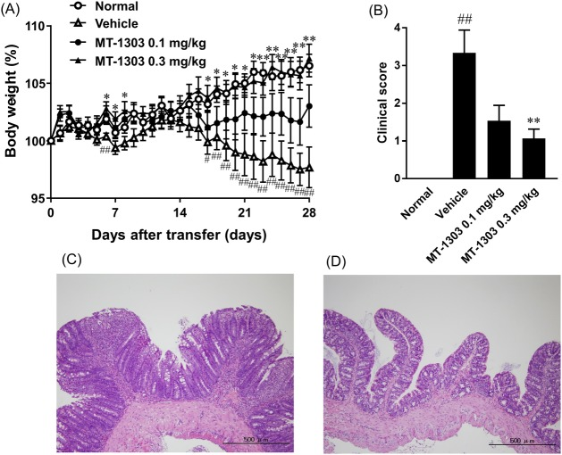 Prophylactic effects of MT-1303 on colitis in SCID mice induced by adoptive transfer of CD4 + CD45RB high T cells. SCID mice were injected with CD4 + CD45RB high T cells to induce colitis. MT-1303 or vehicle was orally administered to SCID mice every day from the day of CD4 + CD45RB high T cell transfer for 28 days. (A) Change in body weight over time. Body weight on each day is expressed as a percentage of the original weight. Each symbol represents the mean ± S.E.M. of body weight (%) in 14–15 mice (n = 14: normal group). Statistical differences were determined using Student's t -test by comparing to the normal group (# p
