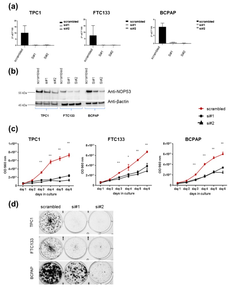 Knockdown of wild-type NOP53 reduces cell proliferation and clonogenicity: ( a ) Validation of two different siRNAs (si#1 and si#2) targeting NOP53 gene expression in three different thyroid cancer cell lines (TPC1, FTC133 and BCPAP) using qPCR; ( b ) Validation of two different siRNAs (si#1 and si#2) targeting NOP53 protein expression in three different thyroid cancer cell lines (TPC1, FTC133 and BCPAP) using Western blots. The total protein lysates used were 25 µg for TPC1 cell line; and 30 µg for FTC133 and BCPAP cell lines. GAPDH and β-actin were used as an internal and loading control for qPCR and Western blot, respectively; ( c ) Transient knockdown of NOP53 in three different cell lines with two siRNAs significantly reduced cell proliferation compared to negative control (scrambled), suggesting a proto-oncogenic function of NOP53 ; ( d ) Transient knockdown of NOP53 in three different cell lines with two siRNAs significantly reduced cell clonogenicity compared to negative control (scrambled), suggesting a proto-oncogenic function of NOP53 . * indicates adjusted p value