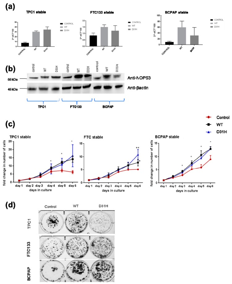 Effects of stable overexpression of NOP53 in three cell lines (TPC1, FTC133, BCPAP): ( a ) Validation of stable overexpression of wild type (WT) and D31H mutant NOP53 in three cell lines by qPCR; ( b ) Validation by Western blot. The lower band corresponds to the endogenous protein expression, whereas the upper band represents the exogenous overexpressed protein. The total protein lysates used were 25 µg for TPC1 cell line, and 30 µg for FTC133 and BCPAP cell lines. GAPDH and β-actin were used as an internal and loading control for qPCR and Western blot, respectively; ( c ) Overexpression of WT and D31H mutant NOP53 significantly increased the cell proliferation in thyroid cancer cell lines compared to the vector control; ( d ) Overexpression of WT and D31H mutant NOP53 significantly increased the cell clonogenicity in thyroid cancer cell lines compared to the vector control. * indicates adjusted p value