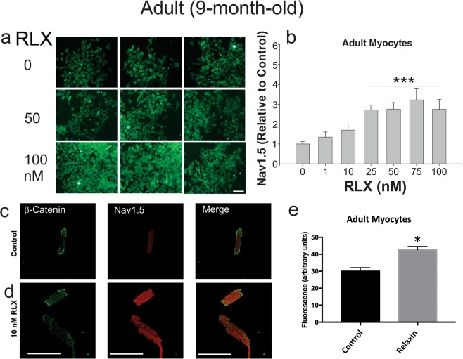 Relaxin up-regulates Nav1.5 in LV cardiomyocytes. ( A ) Rat ventricular myocytes treated with increasing concentrations of RLX were fixed and labeled with Nav1.5 Ab. The data show that Nav1.5 fluorescence visibly increases with RLX treatment. ( B ) Dose-response of the ratio of Nav1.5 to phalloidin fluorescence (used for normalization purposes). EC 50 ~1.3 nM, ( n = 6 wells/data point, P