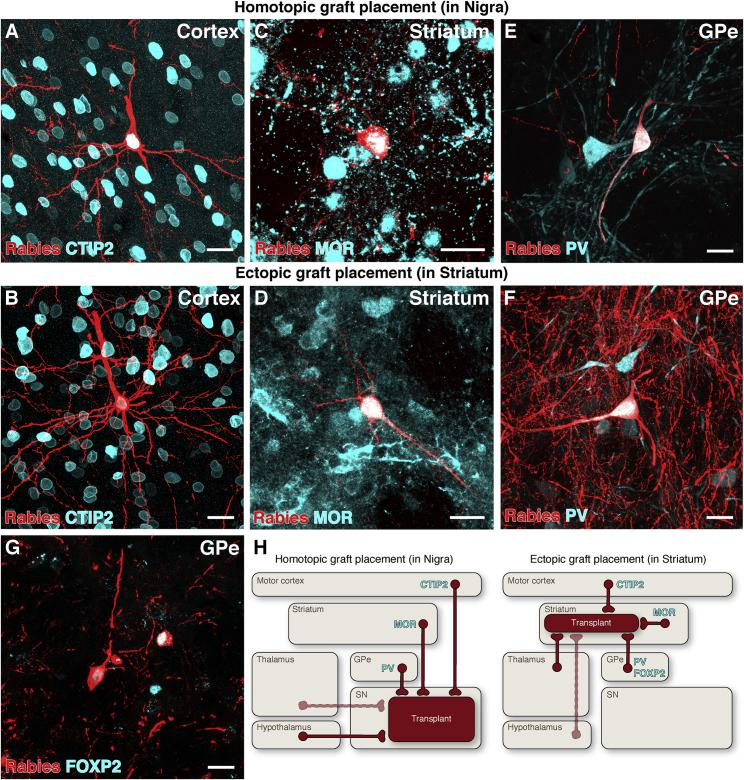 Phenotypic Similarity of Monosynaptic Inputs to Ectopic versus Homotopic VM-Patterned Grafts (A–F) CTIP2 + pyramidal neurons in motor cortex (A and B), MOR + medium spiny neurons in striatum (C and D), and PV + neurons in GPe (E, F) connected to both homotopic (intranigral) and ectopic (intrastriatal) grafts of VM-patterned neurons. (G) FOXP2 + GPe neurons were observed connecting only to grafts placed ectopically in the striatum. (H) Schematic representations of the origin of host synaptic inputs to grafts placed in the substantia nigra versus the striatum. Solid lines represent host brain structures with extensive synaptic input to transplanted neurons, while dashed lines represent structures with comparatively scarce inputs. Scale bars represent 20 μm. CTIP2, COUP-TF-interacting protein 2; FOXP2, forkhead box P2; GPe, external globus pallidus; MOR, mu-opioid receptor; PV, parvalbumin; SN, substantia nigra.