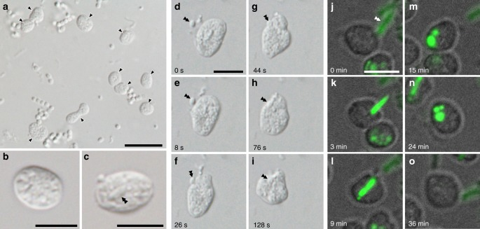 Light and fluorescent micrographs of ' Candidatus Uab amorphum'. a Cells of ' Ca . Uab amorphum' (arrowheads) in the xenic culture. b , c A cell of ' Ca . Uab amorphum'. Double arrowheads indicate an engulfed bacterium. d – i Selected images of time-lapse video showing prey engulfment process of ' Ca . Uab amorphum'. j – o Selected images of confocal fluorescent time-lapse video showing prey engulfment and digestion process of ' Ca . Uab amorphum'. Green fluorescence indicates AcGFP1-labelled Escherichia coli . Scale bars, 10 μm ( a ) and 5 μm ( b – o ).