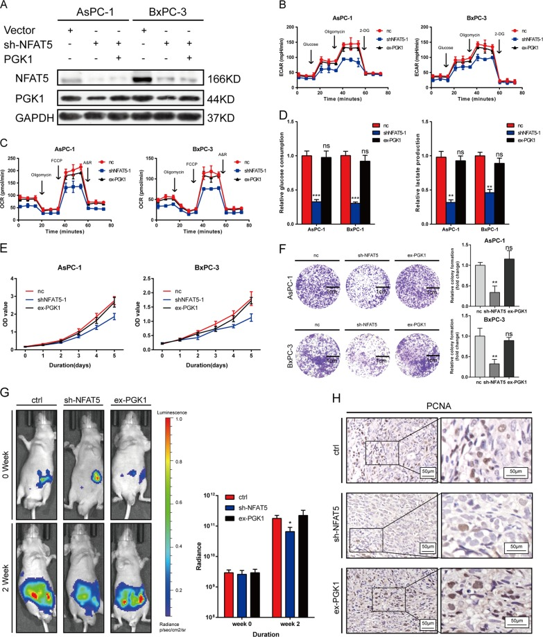 NFAT5 boosts proliferation and the Warburg effect partially via PGK1. a Overexpression efficacy of PGK1 in sh-NFAT5-treated AsPC-1 and BxPC-3 cells was determined by western blotting. b , c Altered level of ECAR and OCR in AsPC-1 and BxPC-3 cells in three different groups (control, shRNA, and PGK1 over-expression). Values are means ± SD. d Relative glucose consumption and lactate production in AsPC-1 and BxPC-3 cell lines in three different groups (control, shRNA, and PGK1 over-expression). e PGK1-overexpression reversed the inhibitory effects of the knockdown of NFAT5 on the CCK8 assay of PDAC cells, and values are means ± SD. f PGK1-overexpression reversed the inhibitory effects of the knockdown of NFAT5 on the colony formation properties of PDAC cells. g Representative bioluminescence photograph of mice orthotopically implanted with luciferase-expressing AsPC-1 cells. h IHC staining of PCNA in mice orthotopically implanted tissue. Assays shown in Fig. 7b–f were performed in hypoxia condition. Values are means ± SD. * P