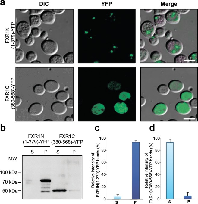Amyloid aggregation of FXR1 protein depends on its N-terminal region. ( a ) The FXR1N(1-379)-YFP protein forms visible aggregates in yeast cells, whereas FXR1C(380-568)-YFP is evenly distributed in cytoplasm. Scale bar, 10 µm. Three independently obtained transformants expressing the FXR1N(1-379)-YFP and FXR1C(380-568)-YFP proteins were included in the analysis. About one hundred cells of each transformant were analyzed. ( b ) Protein lysates expressing the FXR1N(1-379)-YFP and FXR1C(380-568)-YFP proteins were centrifuged, separated into the soluble and insoluble fractions and analyzed by immunoblotting. The FXR1N(1-379)-YFP protein forms insoluble aggregates, whereas the FXR1C(380-568)-YFP is present in soluble form. P – pellet fraction; S - supernatant fraction. ( c , d ) - Relative intensities of bands corresponding to monomers and aggregates of FXR1N(1-379)-YFP and FXR1C(380-568)-YFP represented as mean ± SEM, for three independent protein samples.