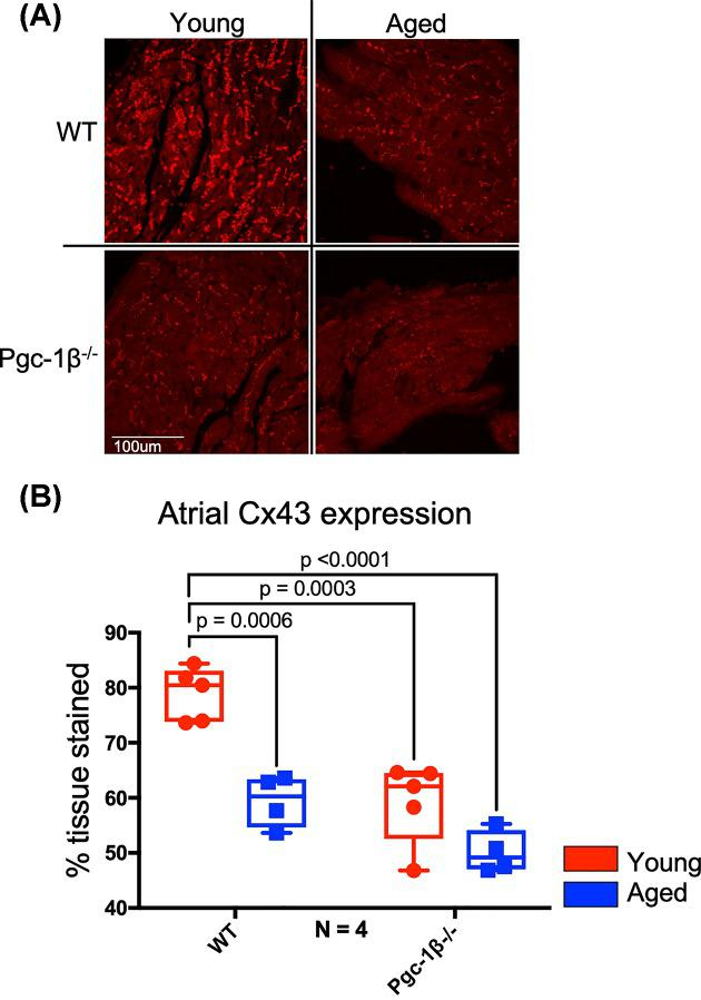 IF analysis of atrial Cx43 expression ( A ) Representative micrographs of Cx43 signal in stained atrial sections visualised at 40×. ( B ) Expression levels of atrial Cx43 as obtained by histomorphometric grid analysis. In (B), red boxes indicate young mice and blue boxes indicate aged mice. Primary polyclonal rabbit anti-Cx43 antibody used at dilution 1:1000; secondary goat anti-rabbit IgG antibody used at dilution 1:250. Significant P -values obtained by post-hoc testing with Tukey's HSD tests are indicated. Note that brightness and contrast have been adjusted to make pictures more legible in print.