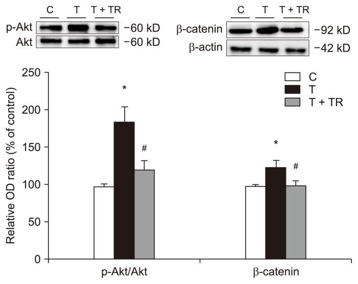 Effects of tranilast on the Akt/β-catenin signaling pathway. Western blot analysis was performed on human peritoneal mesothelial cells (HPMCs) exposed to transforming growth factor-beta 1 (TGF-β1) in the presence or absence of tranilast (100 μM) for 24 hours. Quantification is relative to the control and normalized to β-actin expression. TGF-β1 increased phosphorylated-Akt (p-Akt)/Akt protein expression ratio and β-catenin protein expression. Tranilast reversed these changes. n = 4 per group. C, control; OD, optical density; T, HPMCs with TGF-β1 treatment; T + TR, HPMCs with TGF-β1 and tranilast cotreatment. * P