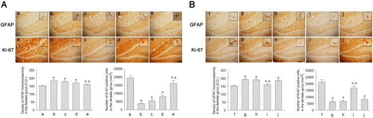 Effect of dexmedetomidine on Ki-67 and GFAP expression in the hippocampal dentate gyrus. A: Evaluation of dose-dependent effects of dexmedetomidine on GFAP and Ki-67 expression ( n = 8). (a) Control group, (b) sleep deprivation group, (c) sleep deprivation and 5 μg/kg dexmedetomidine-treated group, (d) sleep deprivation and 10 μg/kg dexmedetomidine-treated group, (e) sleep deprivation and 20 μg/kg dexmedetomidine-treated group. B: Evaluation of effect of dexmedetomidine antagonist on GFAP expression and Ki-67 ( n = 8). (f) Control group, (g) sleep deprivation group, (h) sleep deprivation 250 μg/kg atipamezole-treated group, (i) sleep deprivation and 20 μg/kg dexmedetomidine-treated group, (j) sleep deprivation and 250 μg/kg atipamezole-treated with 20 μg/kg dexmedetomidine-treated group. Insets show Ki-67 and GFAP-positive expression. The scale bars represent 150 μm. Insets are higher magnification (scale bar: 50 μm). * represents P