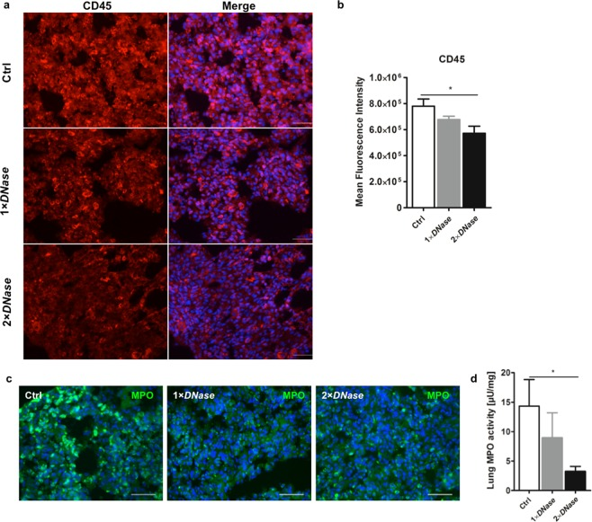 Impact of DNase I on leukocyte extravasation. Rats with or without DNase I treatment that underwent cardiopulmonary bypass (CPB) with deep hypothermic cardiac arrest (DHCA) were sacrificed and lung tissue was collected at the end of surgery. ( a ) Immunofluorescence detection of CD45 in lung tissue of control rats (Ctrl) and those treated with DNase I (1 × DNase I , 2 × DNase I ). Three animals per group were examined. Representative images are depicted. Scale bar: 50 µm. ( b ) Quantification of CD45 fluorescence expressed as mean fluorescence intensity. Ten random fields were examined from each specimen at 400 × magnification. DNase I treatment significantly reduced the number of CD45-positive cells.* P