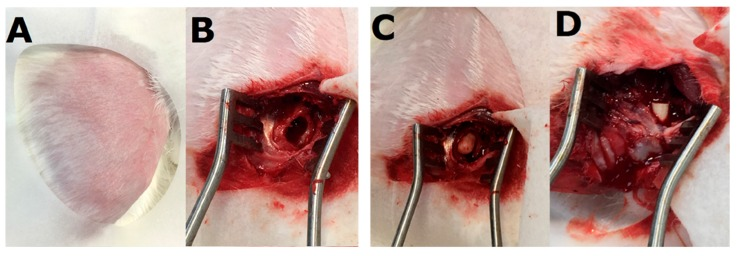 Images of the surgical procedure. ( A ) The right femoral site was depilated and sterilized. ( B ) a bone cavity was formed (5.0 × 10.0 mm 2 ); ( C ) a polymethylmethacrylate spacer was placed into the bone cavity; ( D ) after 2 weeks, fluconazole-impregnated Poly( d , l -lactide- co -glycolide) cylindrical beads (5.0 × 6.0 mm 2 ) were placed into the right femoral bone cavity.