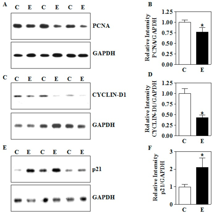 Effects of intrauterine IEV exposure on the protein expression of growth modulators in the placenta. The IEV exposure was performed as in Figure 1 . ( A ) Representative immunoblots and ( B ) densitometric summary for PCNA in the placenta; ( C ) CYCLIN-D1 protein expression by immunoblotting and ( D ) its densitometric quantification in the placental tissue; ( E ) determination of placental p21 protein expression and ( F ) its quantification summary. For each measurement, a total of 12 placentas with 4 each from 3 different litters were used. Values represent the mean ± SEM. * p