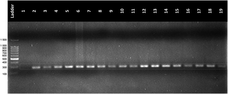 Amplification of β-globin gene region from DNA isolated from LBC samples. Lane L: DNA ladder; Lane 1: negative control; Lanes 2–18: amplicon DNA of LBC samples; Lane 19: positive control amplicon DNAg previously known; Conditions: 8 μL of amplicon DNA in agarose gel at 2% at 95 volts during 90 minutes.