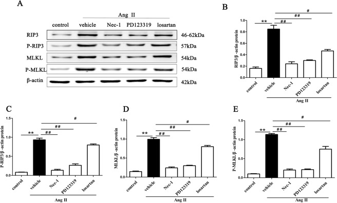 Ang II induces RIPK3-MLKL-mediated necroptosis in HK-2 cells. HK-2 cells were pretreated with or without 10 µM losartan and 10 µM PD123319 for 30 min or 50 µM Nec-1 for 30 min, followed by exposure to 10 −9 M Ang II for 24 h. Representative Representative blots ( A ) and Western blot analysis ( B–E ) for necroptosis marker proteins: RIP3, MLKL, p-RIP3, and p-MLKL antibodies were used; β-actin was used as a loading control. The results are representative of three independent experiments. The intensities of the bands were determined quantitatively using Image-Pro Plus 6.0 **p