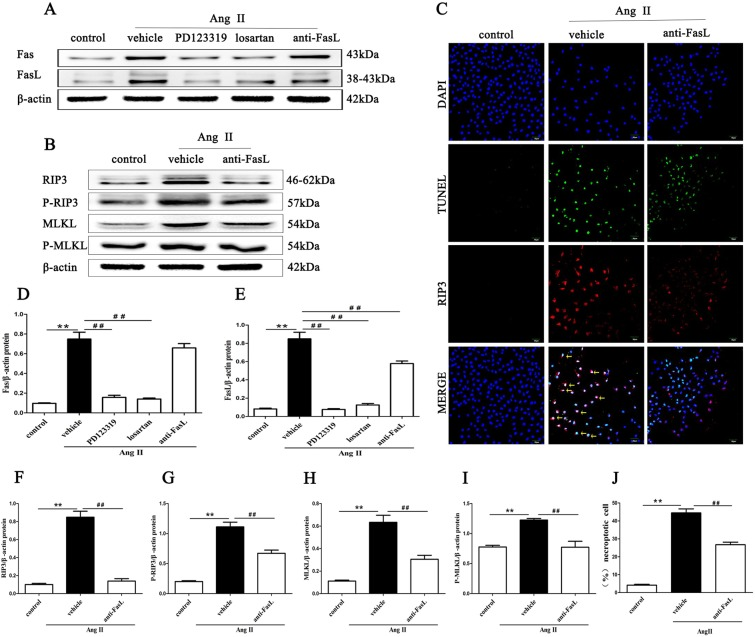 Inhibition of AT1R and AT2R mitigates the expression of Fas/FasL signaling molecules in Ang II-induced HK-2 cells. Effects of FasL blockade via neutralizing human Fas ligand/TNFSF6 antibody on Ang II-induced necroptosis in HK-2 cells were determined. HK-2 cells were pretreated with 3 µg/ml neutralizing human Fas ligand/TNFSF6 antibody for 2 h and exposed to 10 −9 M Ang II for 24 h. Then, Western blotting was performed to detect Fas and FasL ( A,D,E ), RIP3, MLKL, p-RIP3, and p-MLKL ( B,F–I ) levels and β-actin was used as a loading control. C shows representative images of immunofluorescence staining for RIP3 (red fluorescence) and in situ fluorescence TUNEL staining (green fluorescence). Scale bars represent 50 μm. (J) The data are presented as the % ratio of necroptotic HK-2 cells (TUNEL-positive and RIP3-positive cells). The results shown are representative of three independent experiments. The intensities of the bands were determined quantitatively using Image-Pro Plus 6.0 **p