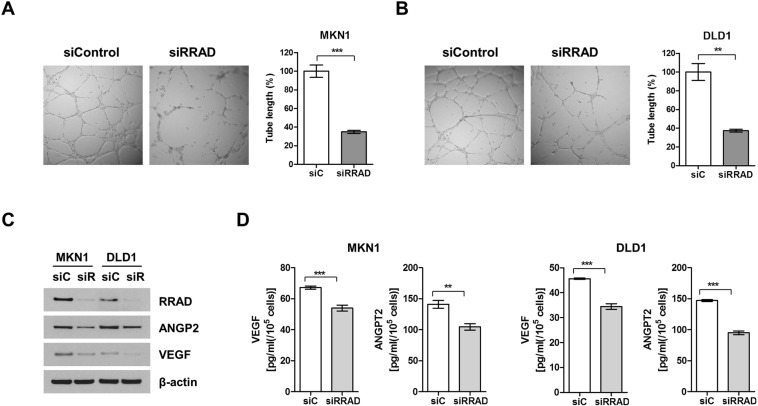Depletion of RRAD decreases angiogenesis-related factors. HUVEC cell was seeded on Matrigel and incubated for 18 h in siControl or siRRAD#1-transfected MKN1 cells ( A ) and DLD1 cells medium ( B ). Tube formation was determined by assessment of the total length of tube in three randomly selected fields. Data represent mean ± SD of three independent experiments. Angiogenesis-related factors including VEGF and <t>angiopoietin</t> 2 were also decreased by siRRAD with immunoblotting ( C ) and ELISA analysis ( D ). Full-length blots are presented in Supplementary Fig. S8 . *P