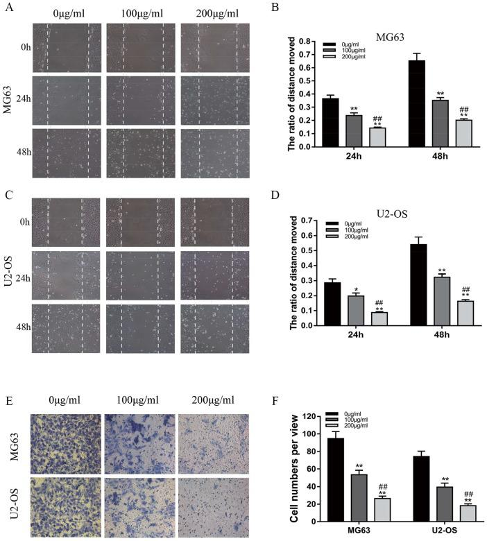 Ganoderma lucidum suppresses the migration and invasion of MG63 and U2-OS cells. (A, B) Changes in migration of MG63 cells following treatment with 0, 100, or 200 µg/mL G lucidum for 24 or 48 hours. (C, D) Changes in migration of U2-OS cells following treatment with 0, 100, or 200 µg/mL G lucidum for 24 or 48 hours. (E, F) Changes in invasion of MG63 and U2-OS cells after treatment with 0, 100, or 200 µg/mL G lucidum for 24 hours. N = 3, mean ± SD, * P