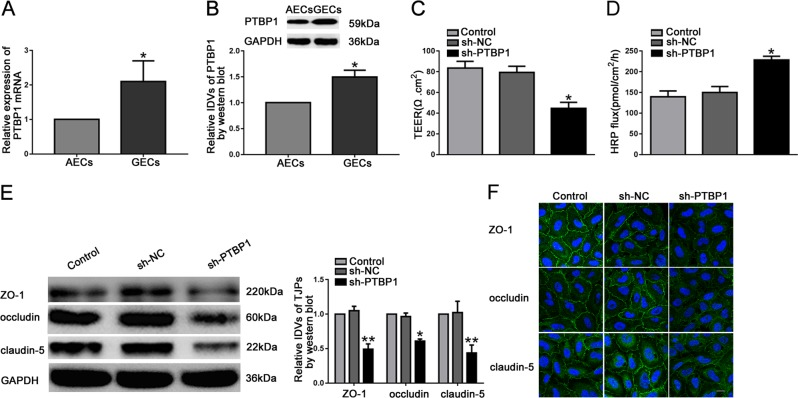 Knockdown of PTBP1 increased BTB permeability in vitro and reduced the expression levels of tight junction-related proteins. a Relative PTBP1 expression in AECs and GECs determined by qRT-PCR. Data represent mean ± SD ( n = 5, each). * P