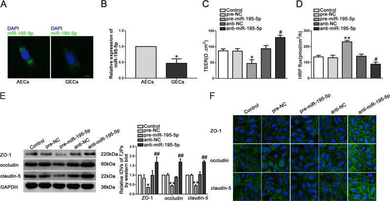 Overexpression of miR-195-5p increased in vitro BTB permeability and reduced the expression levels of tight junction-related proteins. a The expression and location of miR-195-5p in AECs and GECs were detected by FISH. (green, miR-195-5p; blue, DAPI nuclear staining). Scale bar represents 20 μm. b Relative miR-195-5p expression in AECs and GECs was detected by qRT-PCR. Data represent mean ± SD ( n = 5, each group). * P