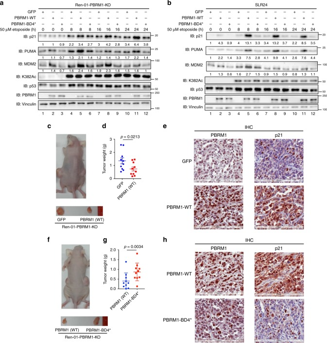 Mutation of BD4 abolishes the tumor suppressive function of PBRM1. a , b GFP, wild-type or BD4* mutant PBRM1 were stably expressed in Ren-01 PBRM1 KO cells (combination of three clones) ( a ) or PBRM1-null SLR24 cells ( b ). Cells were treated with 50 μM etoposide for the indicated times, and lysates were analyzed via immunoblots with indicated antibodies. The band intensity of indicated protein was measured with Bio-rad Image Lab 4.1, and the relative ratios were calculated over the signal intensity of Vinculin in the corresponding lanes. c – e . Nude mice xenograft analyses were performed with Ren-01 PBRM1 KO cells expressing GFP (left flank) or PBRM1 (right flank). Representative photographs of a mouse ( c , top) and tumors ( c , bottom). Tumors were excised and weighed, and data are presented as mean ± SEM ( d ). p-values were calculated using the paired two-tailed Student's t -test. Tumors were stained for PBRM1 and p21 expression via IHC ( e ). Scale bar: 200 μm. f – h Nude mice xenograft analyses were performed with Ren-01 PBRM1 KO cells expressing wild-type PBRM1 (left flank) or the BD4* mutant PBRM1 (right flank). Tumors were excised and weighed, and data are presented as mean ± SEM ( g ). p -values were calculated using the paired two-tailed Student's t -test. Representative photographs of a mouse ( f , top) and tumors ( f , bottom). Tumors were stained for PBRM1 and p21 expression via IHC analysis ( h ). Scale bar: 200 μm. Source data are provided as a Source Data file.