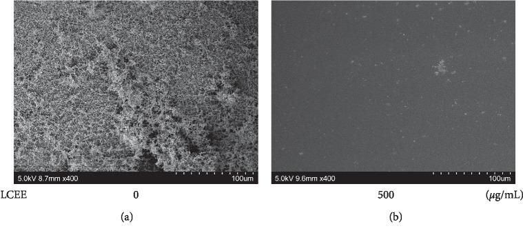 Inhibitory effect of LCEE on biofilm formation by P. gingivalis evaluated by SEM assay. P. gingivalis JCM12257 was treated with or without LCEE (500 μ g/mL) for 72 h. Tracheal tube was involved in culture medium. Biofilm was analyzed by scanning electron microscopy (SEM). (a) Untreated bacteria. (b) LCEE-treated bacteria. LCEE: Lonicera caerulea var. emphyllocalyx extract.