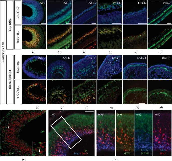 Islet1 coexpressed with Brn3 in retinal ganglion cells. (a–f) Islet1 and Brn3 colabeled retinal ganglion cells in the human fetal retina. From Fwk 20, Brn3 expression gradually decreased and was negative in Fwk 27. (g–i) Islet1-/Brn3-positive retinal ganglion cells were located on the basal side of the retinal organoid but were not laminated well. (j–l) Only sporadic Islet1-positive cells were on the basal side and were Brn3 negative. (m) Most Brn3-positive retinal ganglion cells exited the cell cycle in Fwk 9 retina. The high magnification showed one cell with Brn3 expression but still in the cell cycle. (n1) Triple staining with Islet1, Brn3, and progenitor marker MCM2 in Fwk 9 retina. (n2–n5) Showing high magnification of the white square in (n1) (scale bar = 100 μ m).