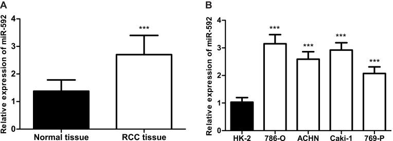 Relative miR-592 expression in RCC tissues and cell lines. ( A ). The qRT-PCR analysis showed the expression of miR-592 in the RCC tissues and the adjacent normal tissues. Differences were analyzed using 2-tailed Student's t-test. ( B ). qRT-PCR analysis of miR-592 in RCC cancer cell lines and normal renal epithelial HK-2 cells. Differences were analyzed using one-way ANOVA followed by Tukey's post-hoc test. *** P