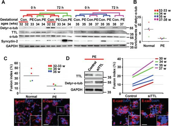 Detyrosination of α-tubulin varies during syncytialization of primary CTBs from normal and PE placentae. ( A ) Western blotting of primary CTBs isolated from both normal and PE placentae after spontaneous syncytialization for 72 h using anti-detyr-α-tub, anti-TTL, anti-α-tubulin, anti-Syncytin-2, and anti-GAPDH antibodies. The colored lines represent groups of corresponding gestational ages. ( B ) Quantification of detyr-α-tub from the western blotting data in A . The band intensities detected with anti-detyr-α-tub antibodies were normalized to the band intensity of GAPDH as the loading control. ( C ) The fusion index was determined contemporaneously with the samples harvested for western blotting in A . For confocal microscopy, Alexa Fluor 555 (red) was used to label E-cadherin to identify the cell boundaries. Nuclei were stained with DAPI (blue). The dots and squares representing individual samples from patients are colored according to the matched gestational ages. The horizontal lines represent the means. ( D ) Primary CTBs from preeclamptic placentae undergoing in vitro syncytialization were simultaneously treated with TTL siRNA and subjected to western blotting analysis using anti-detyr-α-tub, anti-TTL, and anti-GAPDH antibodies. The fusion indices were determined as in C . The lines in the enrichment and fusion index results represent groups of PE placentae and normal placentae of corresponding gestational ages. Scale bar, 20 μm.