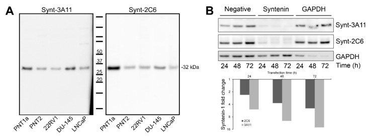 Both the Synt-3A11 and Synt-2C6 monoclonal antibodies interacted specifically with a 32 kDa molecular species of Syntenin-1. ( A ) Ten micrograms of total cell protein from whole-cell lysates of non-malignant PNT1a and PNT2, and 22RV1, DU-145 and LNCaP cancer cell lines were analysed by Western blotting using Synt-3A11 or Synt-2C6 (1 μg/mL) antibodies. Full-length blots are shown. ( B ) siRNA (non-specific control, SDCBP or GAPDH ) was transfected into PNT2 cells for 24, 48 or 72 h and Western blotting performed on 10 μg total protein from whole cell lysate. Detection was performed using 1:10,000 anti-mouse HRP, Novex ® ECL chemiluminescent substrate and <t>ImageQuant™</t> <t>LAS</t> 4000 imager. Detection using Synt-3A11, Synt-2C6 were performed using separate SDS-PAGE gels. Uncropped Western blots are contained within Supplementary Materials .