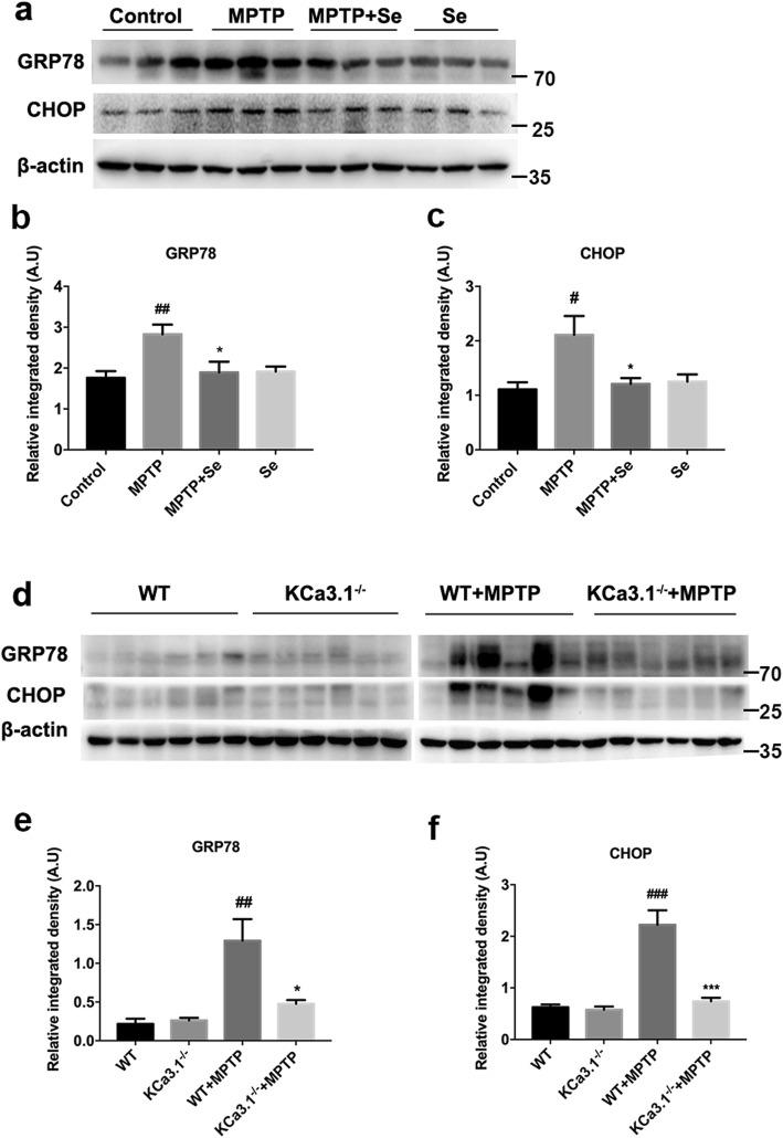Genetic KCa3.1 deletion and pharmacological blockade with senicapoc attenuated MPTP-induced ER stress. a , d Western blot analysis of GRP78 and CHOP protein levels in SNpc. b , c , e , f Data are presented as the mean ± SEM ( n = 5–6). Western blot was repeated three times and showed similar results. # p