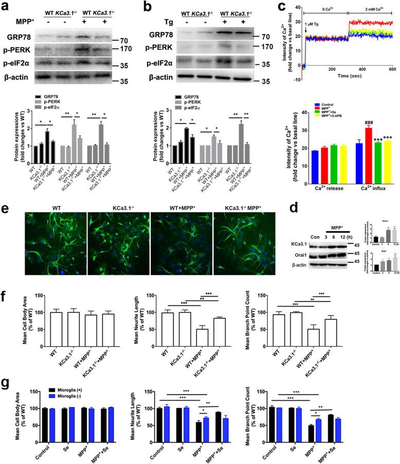 KCa3.1 involved in microglia SOCE and ER stress. a , b Representative images of GRP78, p-PERK, and p-eIF2α in KCa3.1 −/− microglia, responses to 500 μM MPP + ( a ) or 1 μM Tg ( b ) vs. WT cells. Mean values of GRP78, p-PERK, and p-eIF2α relative to β-actin. Data are presented as the mean ± SEM ( n = 3). Western blot was repeated three times and showed similar results. * p