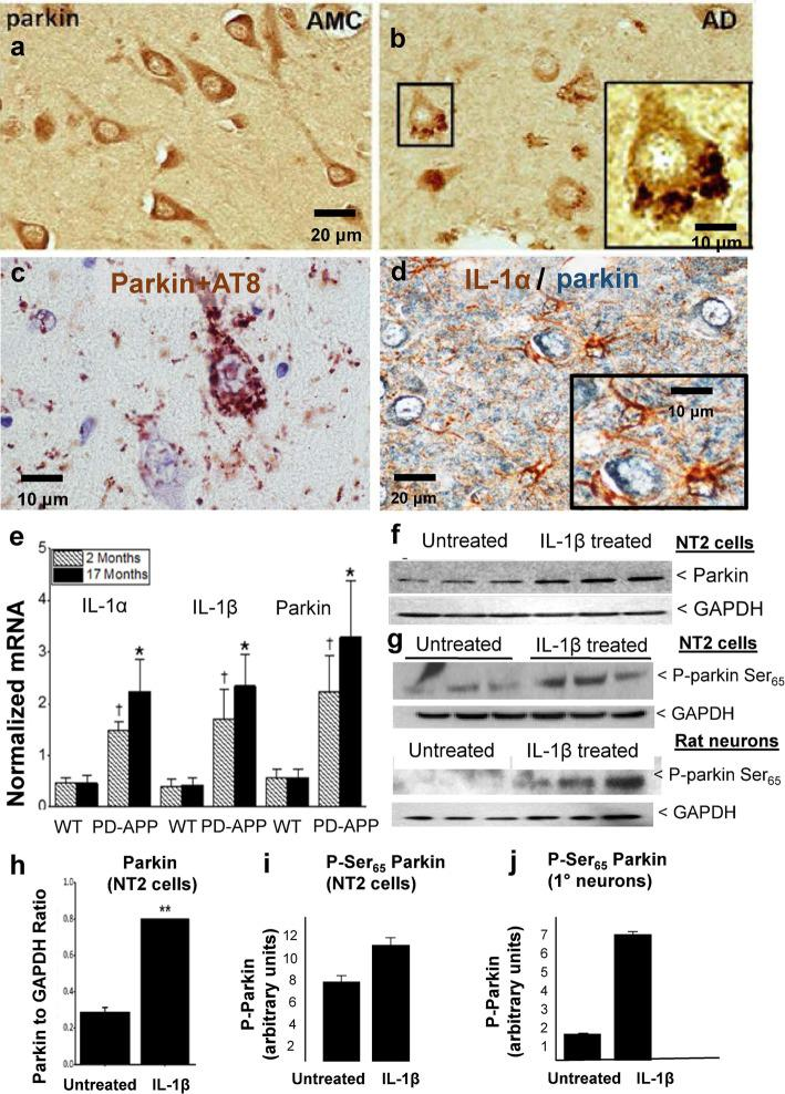 Experimental evidence that regulation of parkin expression and phosphorylation is related to glial activation and excess IL-1β in Alzheimer brain and in AD Model Systems. a Parkin in neurons in brains of age-matched control patients (AMC) is diffusely distributed within the cytoplasm whereas parkin in neurons in brains of Alzheimer patients (AD) is present in rosette-like aggregates ( b ). c Parkin in Alzheimer brain is colocalized with tau aggregates. d Activated glia overexpressing <t>IL-1α</t> (brown) are immediately adjacent to parkin-immunoreactive neurons (blue), scale bar 20 μM. e Comparative levels of IL-1α, IL-1β, and parkin mRNAs in wild-type littermates or PD-APP mice. f Representative western immunoblot showing proteins from NT2 cells either treated, or not, overnight with IL-1β. g Phospho-parkin levels (P-parkin Ser 65 ) in two representative western immunoblots of proteins from NT2 cell and rat primary neuron cultures treated, or not, with IL-1β. h Quantification of parkin in untreated and treated cell cultures ( n = 6), data is mean ± SEM (** p