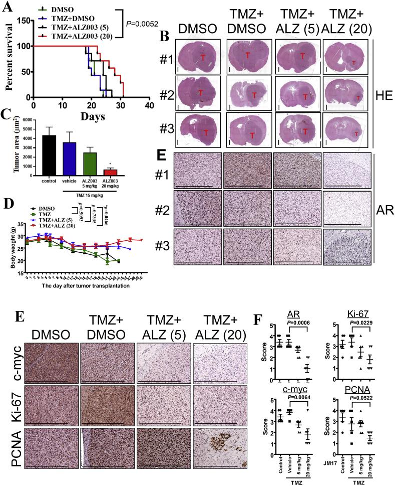 Therapeutic effect of <t>ALZ003</t> on the growth of <t>TMZ-resistant</t> glioblastoma in vivo . A. After intracranial transplantation with TMZ-resistant U87MG cells for 10 days, mice were orally and intravenously administrated with TMZ (15 mg/kg) and ALZ003 three times per week, respectively. The date of death was recorded and analyzed by Log-Rank Test. (** p = 0.0052). B. The mouse brains were paraffin embedded and subject to slides preparation followed by hematoxylin- and eosin-staining. Tumor in each slide was indicated. The scale bar for HE staining of whole brain slice is 1 mm, and that for other IHC images is 0.5 mm. C. The area of tumor was quantitated by the Image J software. The difference with the control group was analyzed using Student's t -test (* p