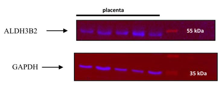 Western blot analysis of placenta homogenates using anti-ALDH3B2 and anti-GAPDH antibodies revealed bands corresponding to the molecular weight of 53 kDa (long isoform of ALDH3B2) and bands corresponding to molecular weight of 37 kDa (GAPDH). Proteins in homogenates were applied onto the polyacrylamide gel. After separation, they were transferred onto the PVDF membrane. Immunodetection of ALDH3B2 protein was performed using anti-ALDH3B2 antibody. After membrane stripping, the immunodetection was repeated with anti-GAPDH antibody. GAPDH detection was used as a loading control, as GAPDH gene is constitutively expressed at high levels in many tissues. The image was taken using <t>ChemiDoc</t> <t>XRS+</t> (Bio-Rad). Additionally, the image of the whole membrane was added into the Supplementary Materials (Supplementary Figure S1) .