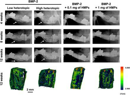 Representative radiographs and micro-CT reconstructions of femoral defects treated with alginate/PCL tissue-engineered constructs. Constructs contained 30 μg of BMP-2, 30 μg of BMP-2 + 0.1 mg of HMPs, or 30 μg of BMP-2 + 1 mg of HMPs. Radiographs were taken at 4, 8, and 12 weeks. White arrows indicate heterotopic ossification. Mineral density evaluated by micro-CT at 12 weeks is depicted in sagittal sections.