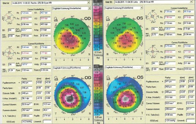 Scheimpflug-based corneal topography of the donor 2 years prior to transplantation revealing bilateral keratoconus, with inferior steepening and corresponding thinning