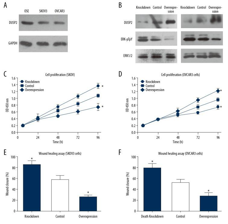 Dual-specificity phosphatase 2 (DUSP2) inhibited ERK1/2 activation and cell proliferation of SKOV3 and OVCAR3 cells in vitro. ( A ) The protein expression level of DUSP2 in OSE, SKOV3, and OVCAR3 cells were compared by Western blot. DUSP2 was down-regulated in SKOV3 and OVCAR3 cell lines. ( B ) Both SKOV3 and OVCAR3 cells were transfected with either siRNA targeting DUSP2 or plasmid overexpressing DUSP2. The transfection efficiency was evaluated by Western blot and compared with the control cells treated with transfection reagents. ( C, D ) The proliferation capacity of SKOV3 and OVCAR3 cells was estimated by the cell counting kit-8 (CCK-8) assay. ( E, F ) The wound-healing assay was conducted to evaluate the effects of silencing or overexpression of DUSP2 on cell migration. Data are shown as the mean±standard deviation (SD) from three independent experiments (* P